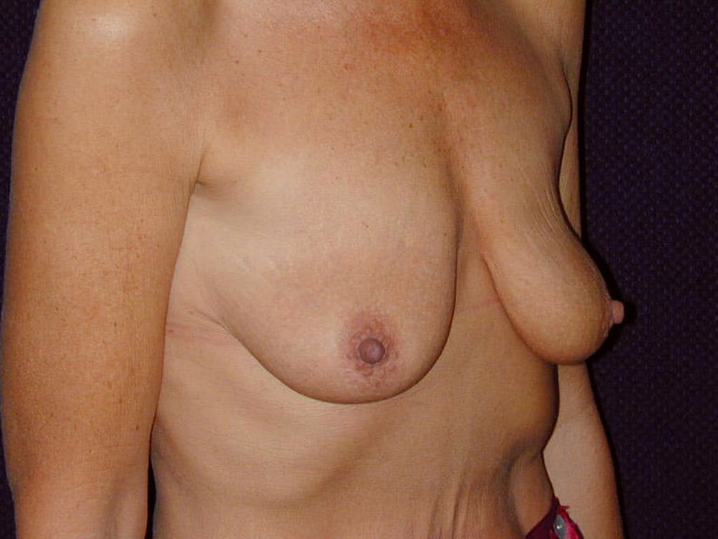 Vertical and Inverted T Breast Lift Gallery - Patient 39244199 - Image 3