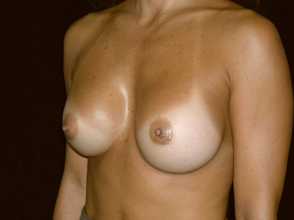 Breast Augmentation Gallery - Patient 39244198 - Image 6