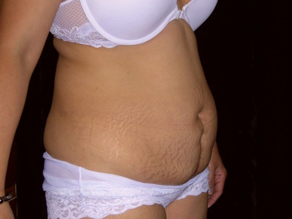 Tummy Tuck Gallery - Patient 39244335 - Image 3