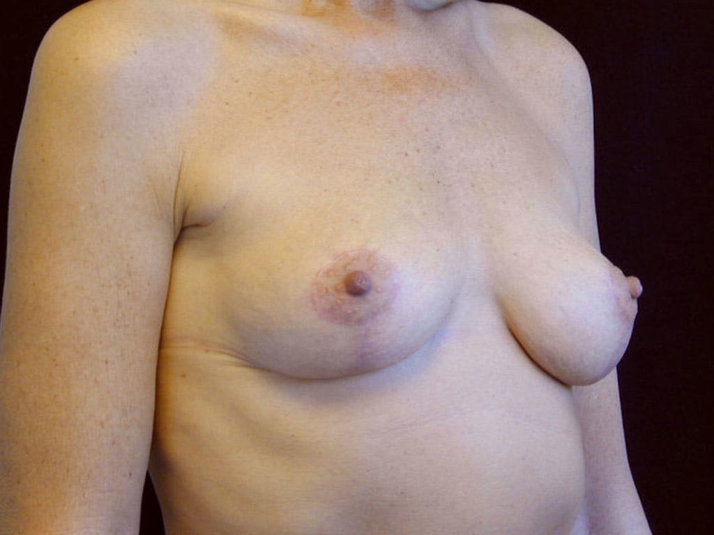 Vertical and Inverted T Breast Lift Gallery - Patient 39244199 - Image 4