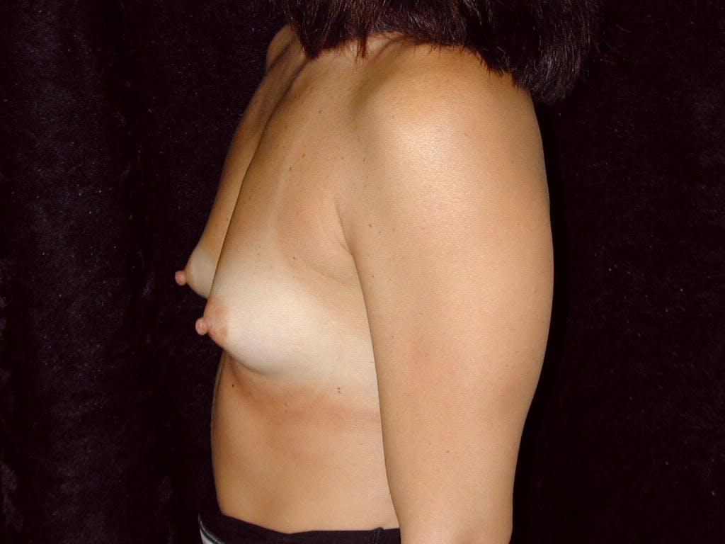 Breast Augmentation Gallery - Patient 39244198 - Image 7
