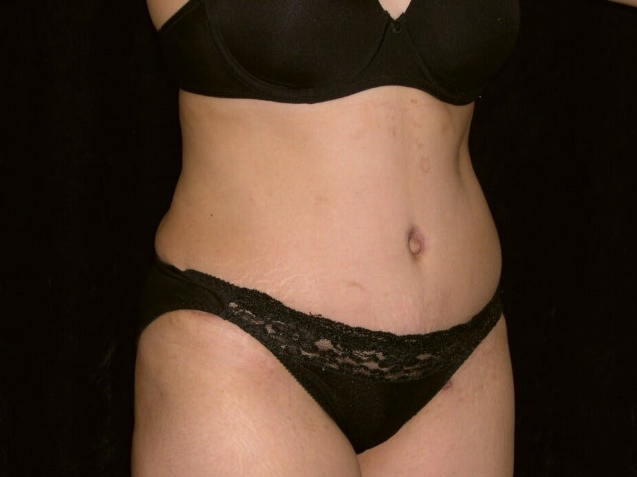 Tummy Tuck Gallery - Patient 39244335 - Image 4