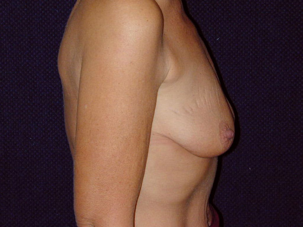 Vertical and Inverted T Breast Lift Gallery - Patient 39244199 - Image 5
