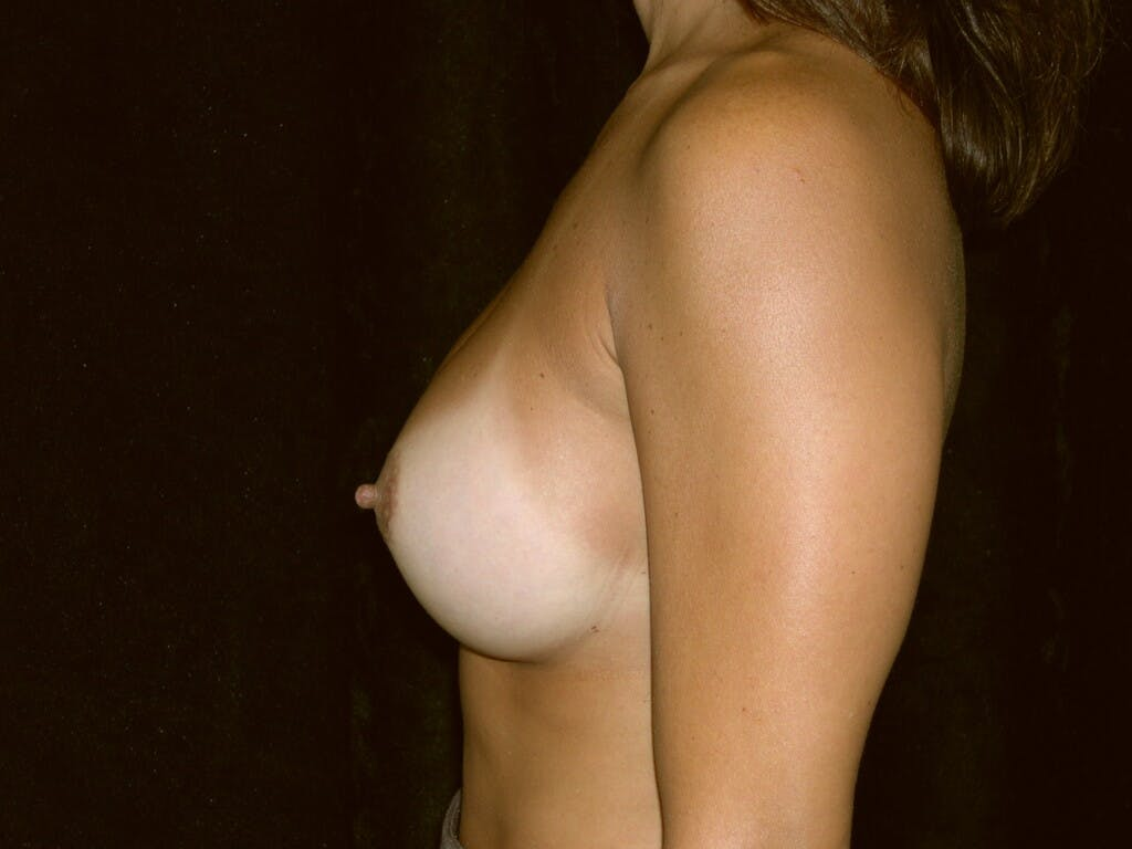 Breast Augmentation Gallery - Patient 39244198 - Image 8