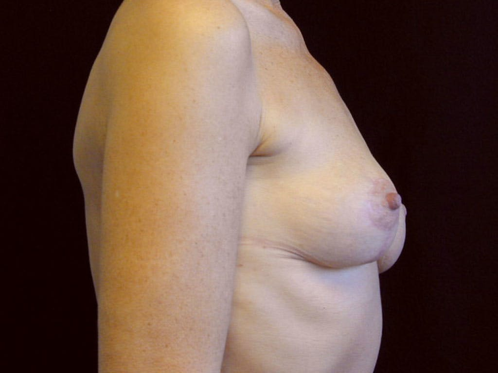 Vertical and Inverted T Breast Lift Gallery - Patient 39244199 - Image 6
