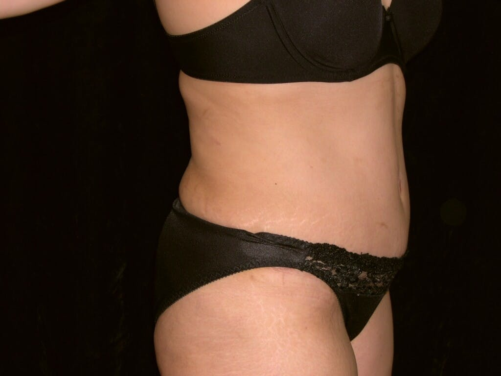 Tummy Tuck Gallery - Patient 39244335 - Image 6