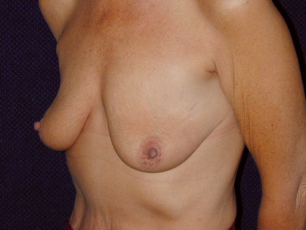 Vertical and Inverted T Breast Lift Gallery - Patient 39244199 - Image 7