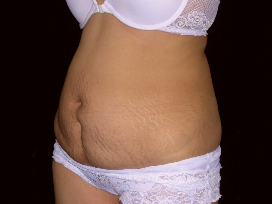 Tummy Tuck Gallery - Patient 39244335 - Image 7