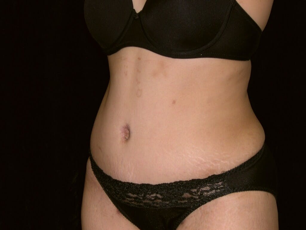 Tummy Tuck Gallery - Patient 39244335 - Image 8