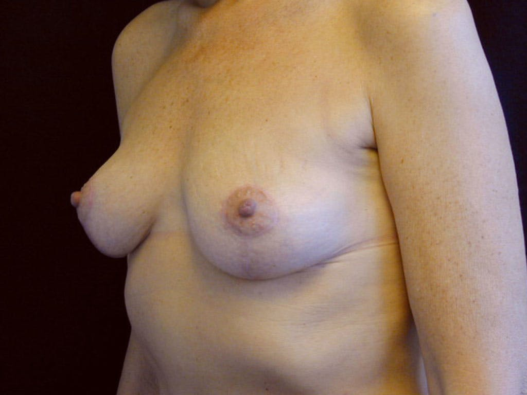 Vertical and Inverted T Breast Lift Gallery - Patient 39244199 - Image 8