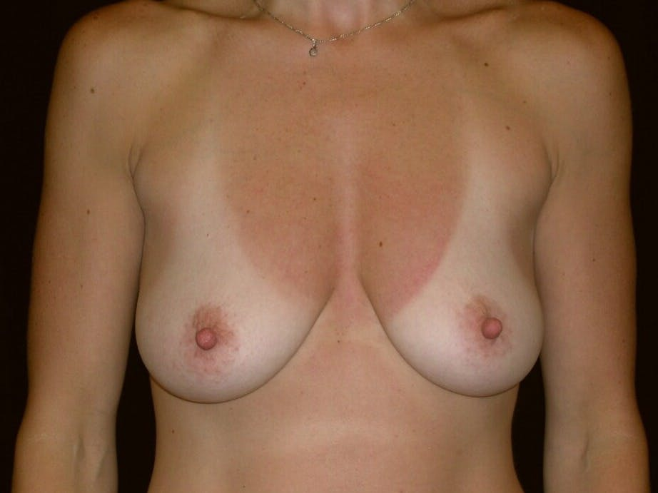 Breast Augmentation Gallery - Patient 39244336 - Image 1