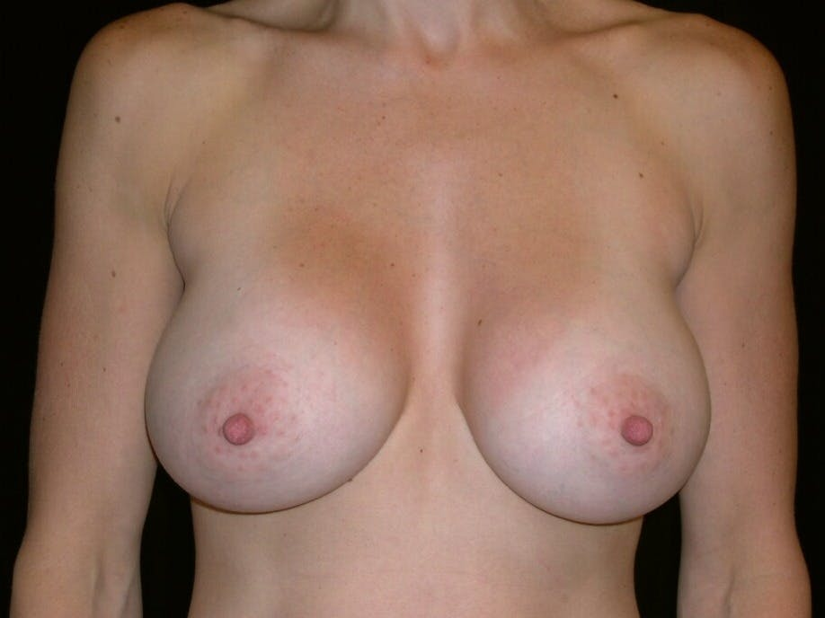 Breast Augmentation Gallery - Patient 39244336 - Image 2