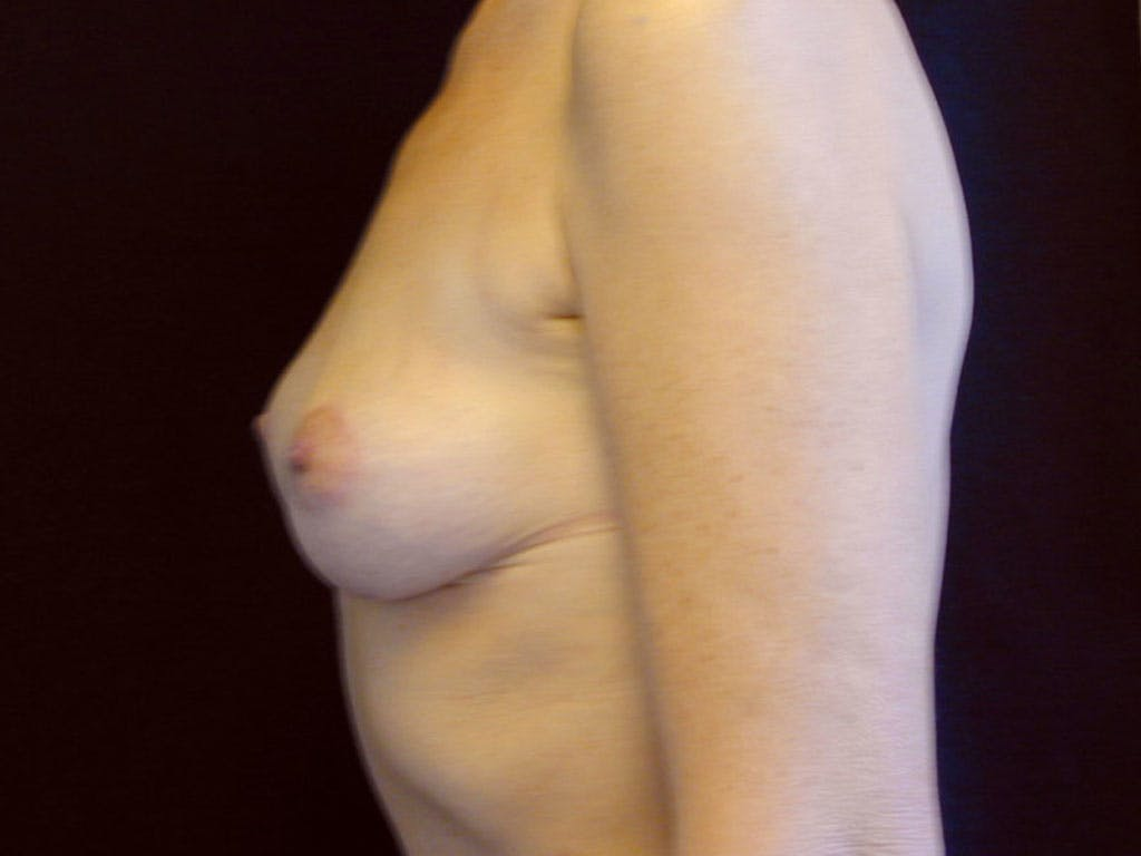 Vertical and Inverted T Breast Lift Gallery - Patient 39244199 - Image 10