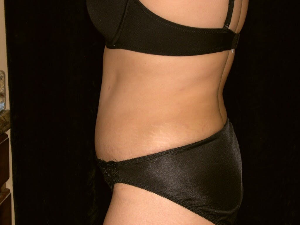 Tummy Tuck Gallery - Patient 39244335 - Image 10