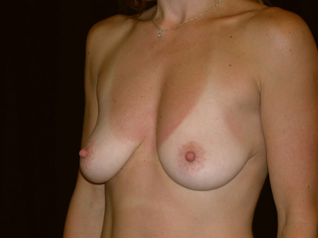 Breast Augmentation Gallery - Patient 39244336 - Image 3