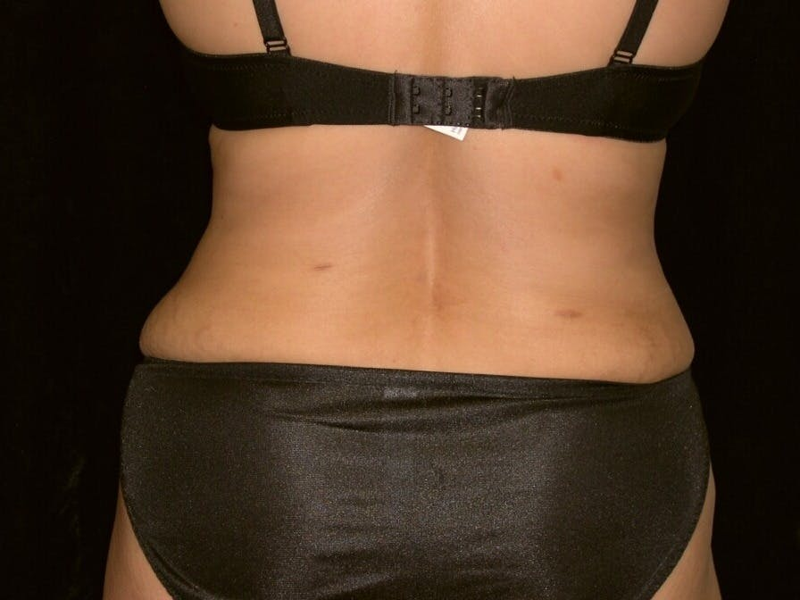 Tummy Tuck Gallery - Patient 39244335 - Image 12