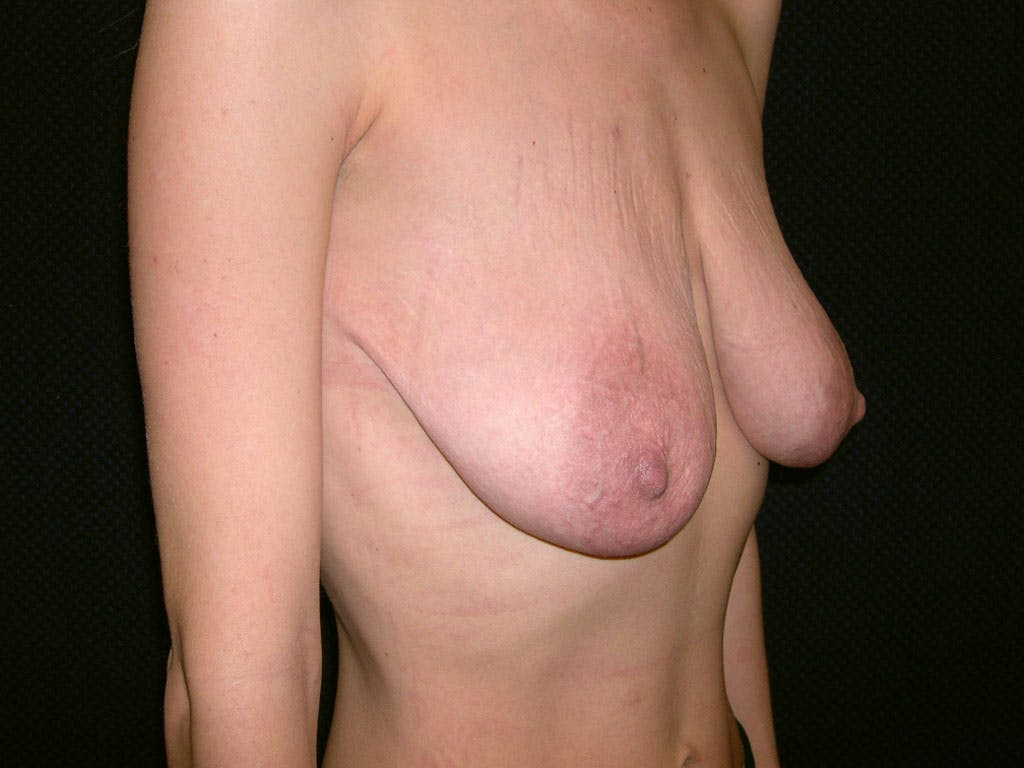 Vertical and Inverted T Breast Lift Gallery - Patient 39244338 - Image 1