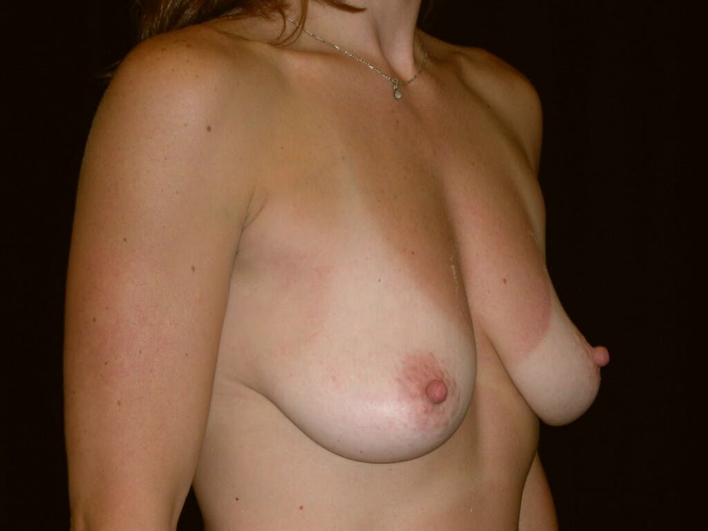 Breast Augmentation Gallery - Patient 39244336 - Image 7