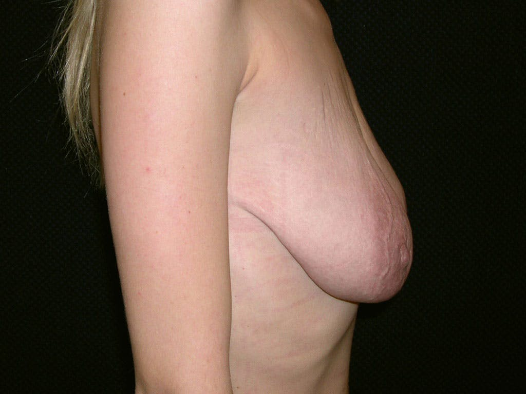 Vertical and Inverted T Breast Lift Gallery - Patient 39244338 - Image 3