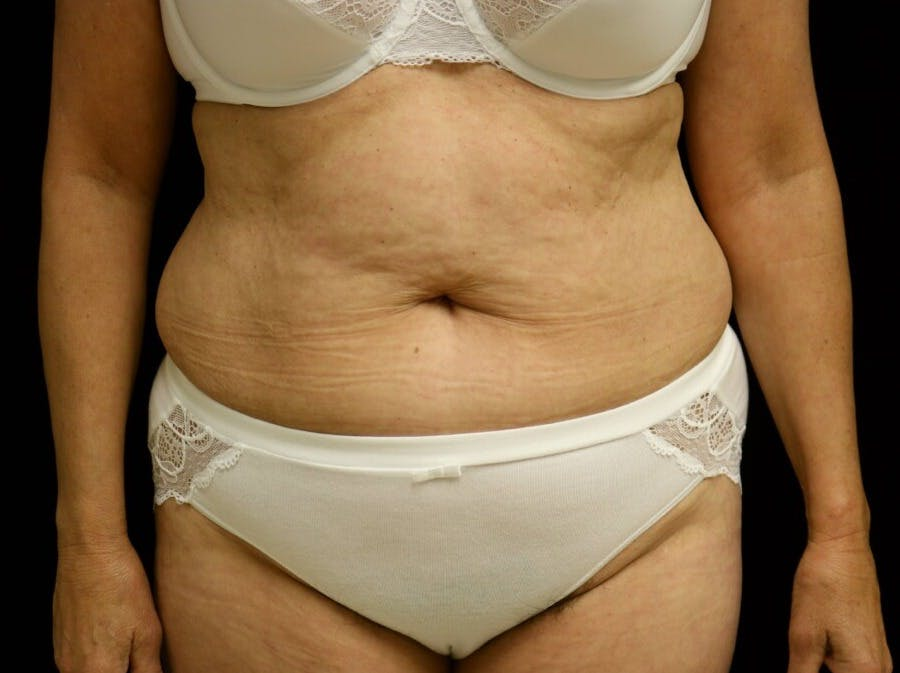 Tummy Tuck Gallery - Patient 39244337 - Image 1