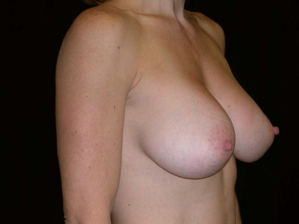 Breast Augmentation Gallery - Patient 39244336 - Image 8