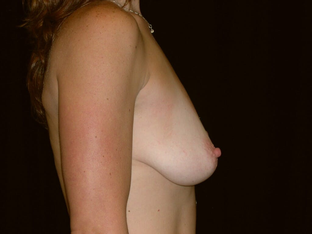 Breast Augmentation Gallery - Patient 39244336 - Image 9