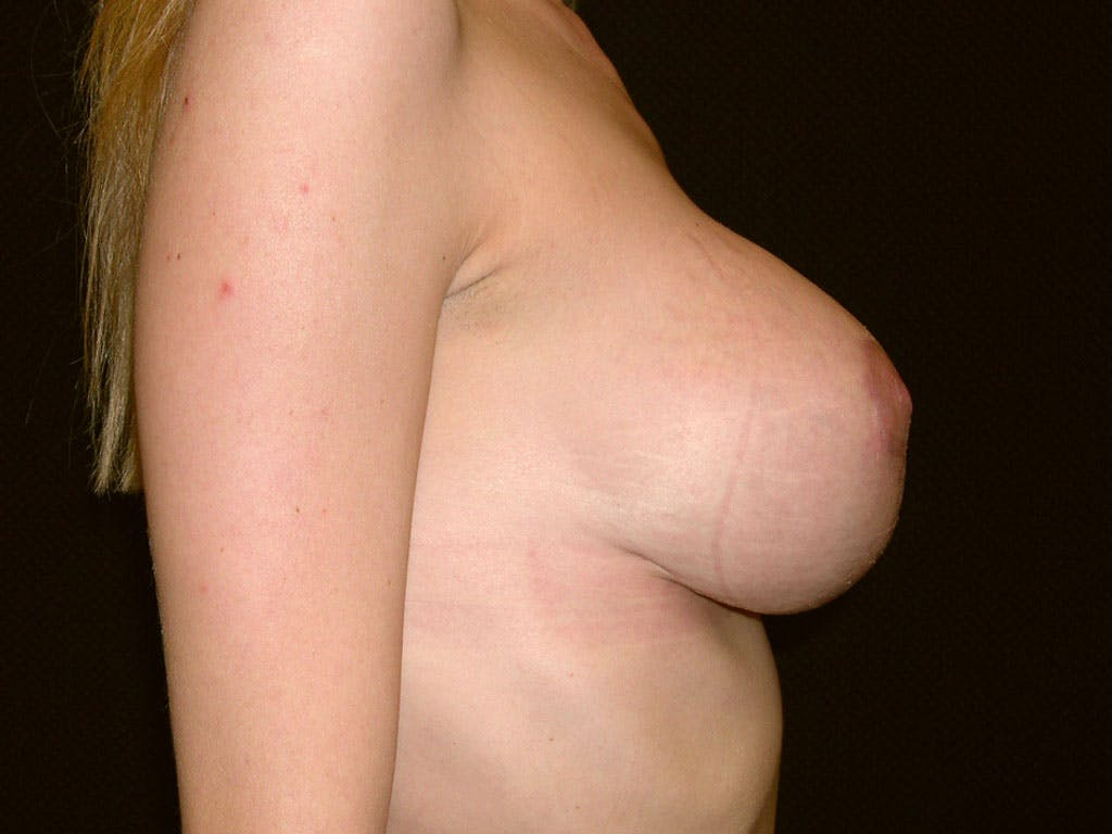 Vertical and Inverted T Breast Lift Gallery - Patient 39244338 - Image 4