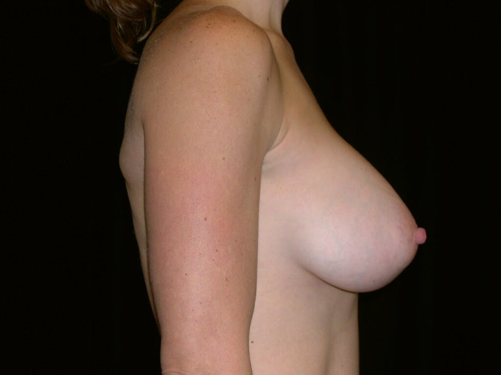 Breast Augmentation Gallery - Patient 39244336 - Image 10