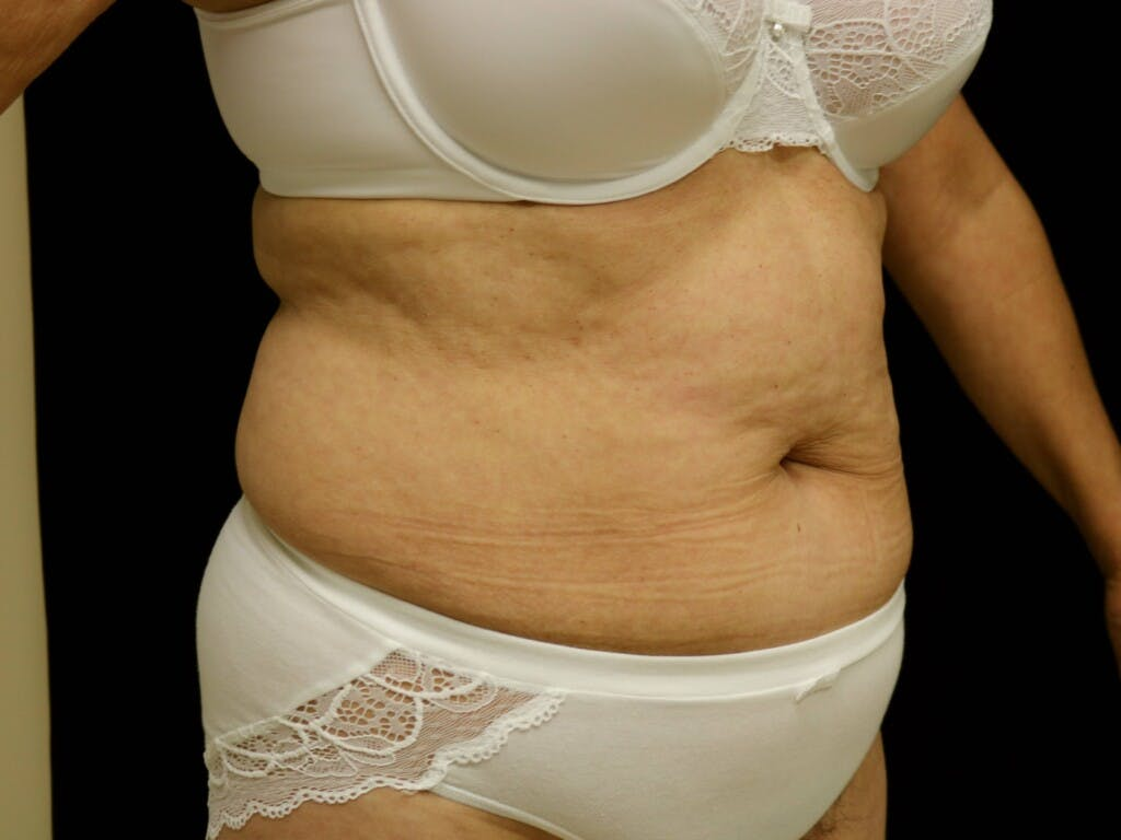 Tummy Tuck Gallery - Patient 39244337 - Image 3