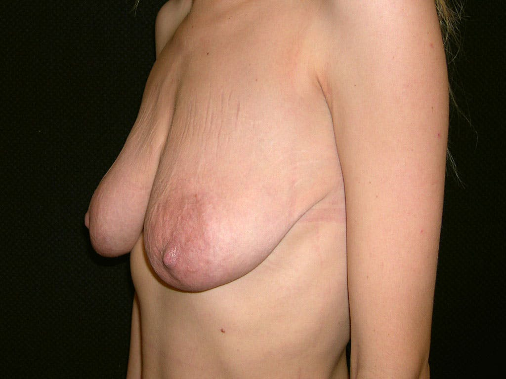 Vertical and Inverted T Breast Lift Gallery - Patient 39244338 - Image 5