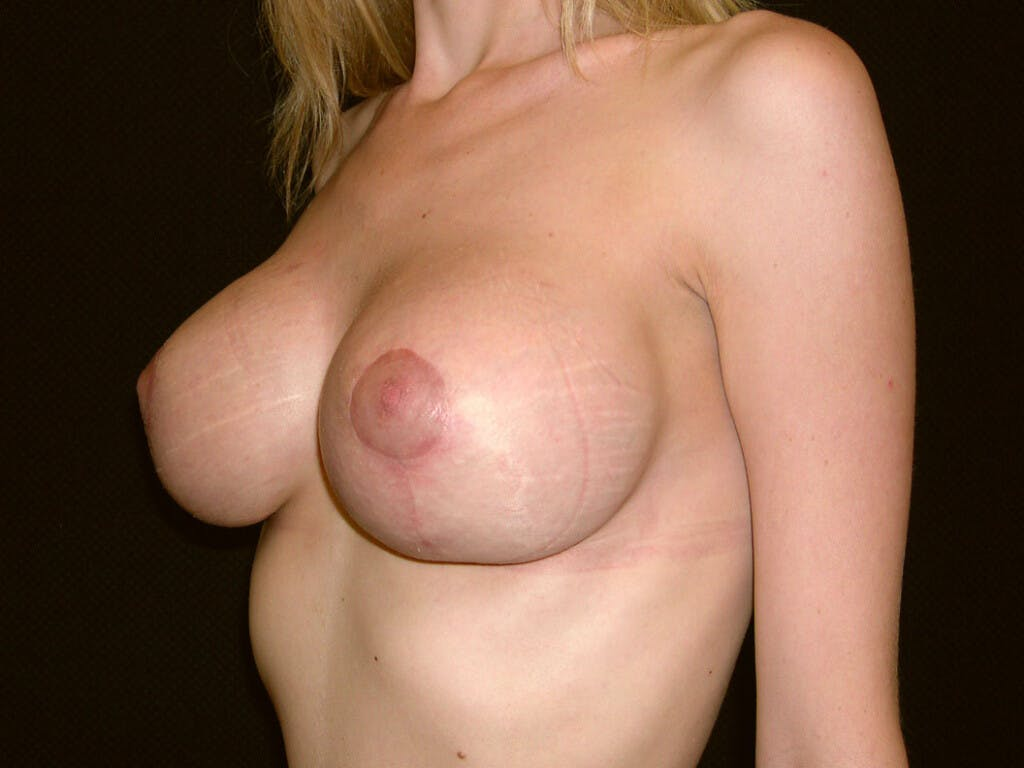 Vertical and Inverted T Breast Lift Gallery - Patient 39244338 - Image 6