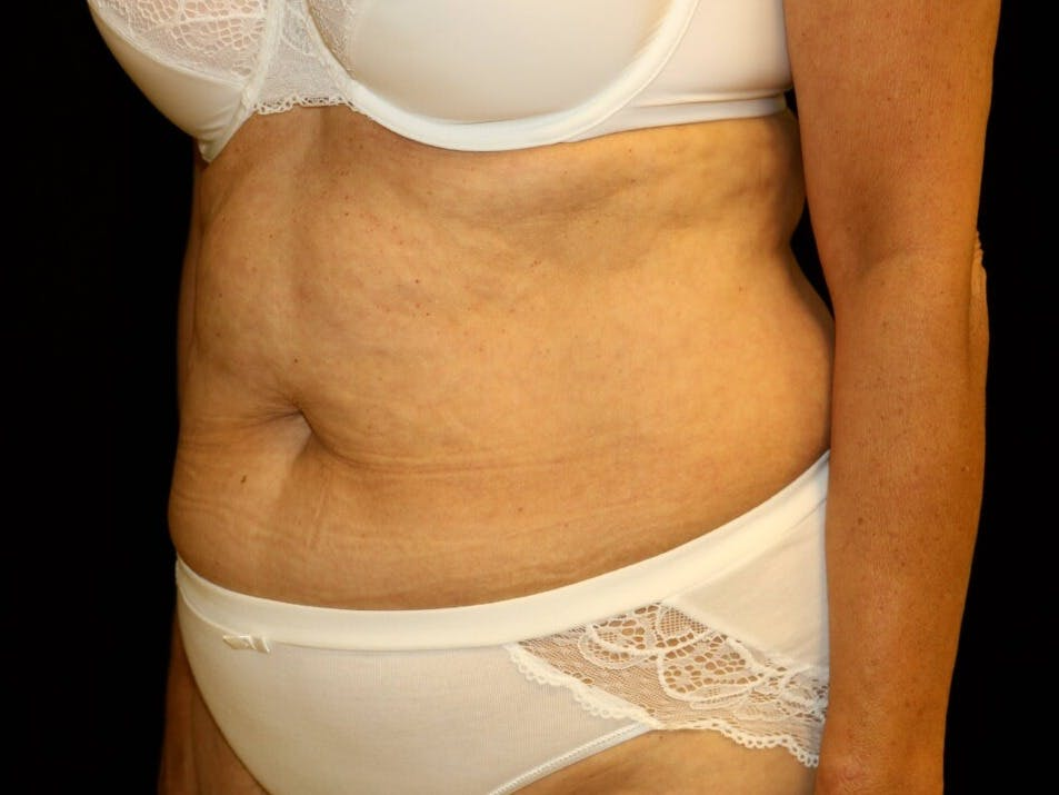 Tummy Tuck Gallery - Patient 39244337 - Image 5