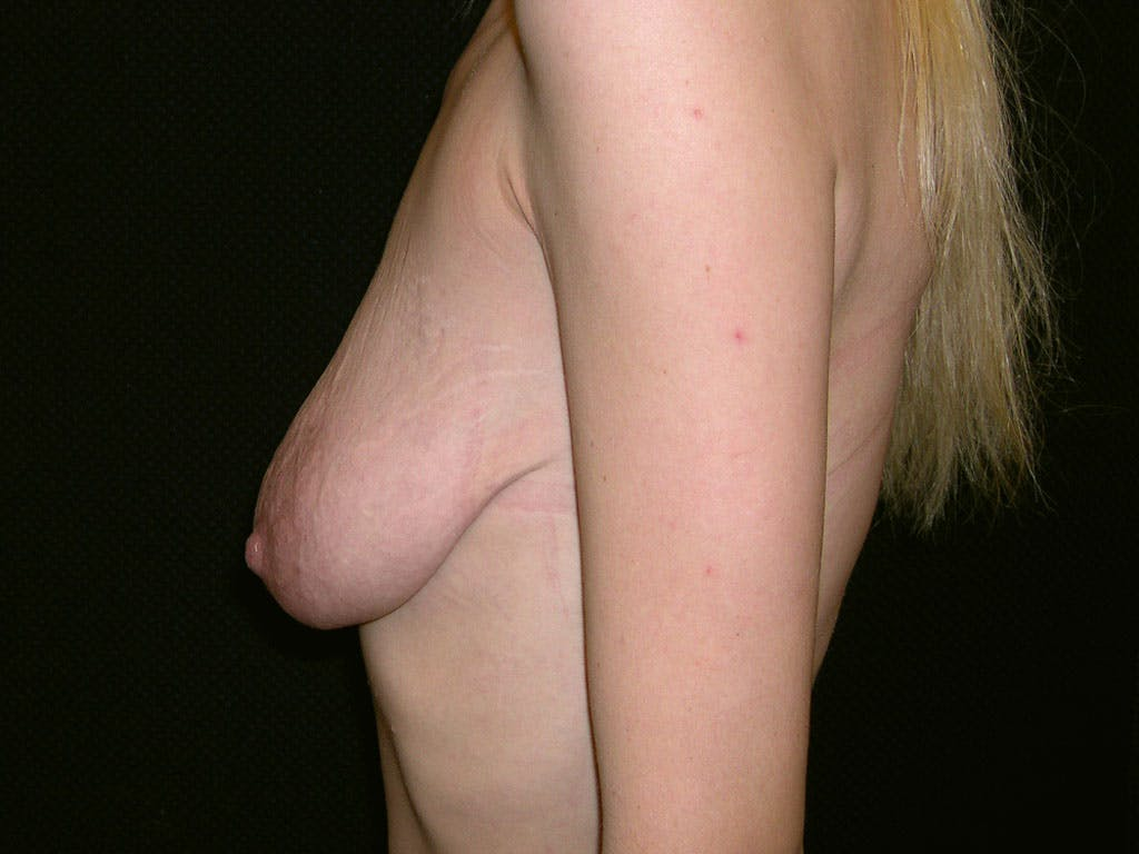 Vertical and Inverted T Breast Lift Gallery - Patient 39244338 - Image 7