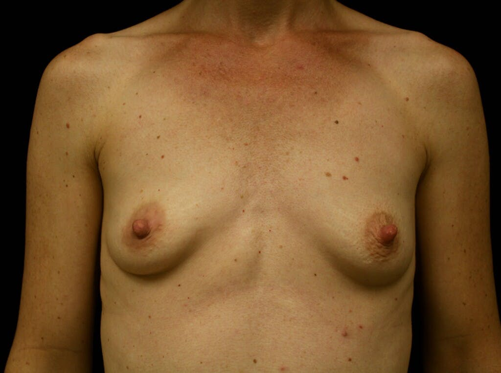 Breast Augmentation Gallery - Patient 39244340 - Image 1