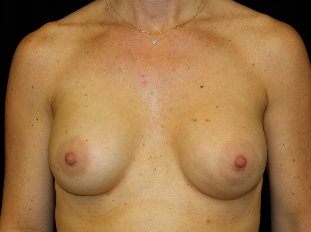 Breast Augmentation Gallery - Patient 39244340 - Image 2