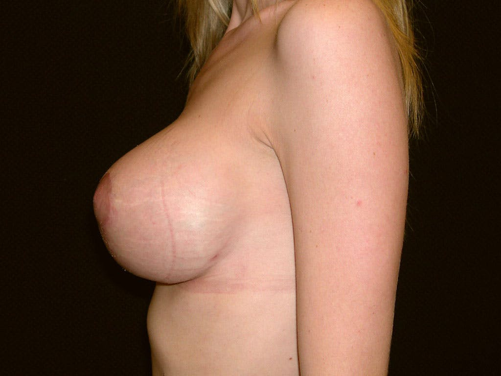 Vertical and Inverted T Breast Lift Gallery - Patient 39244338 - Image 8