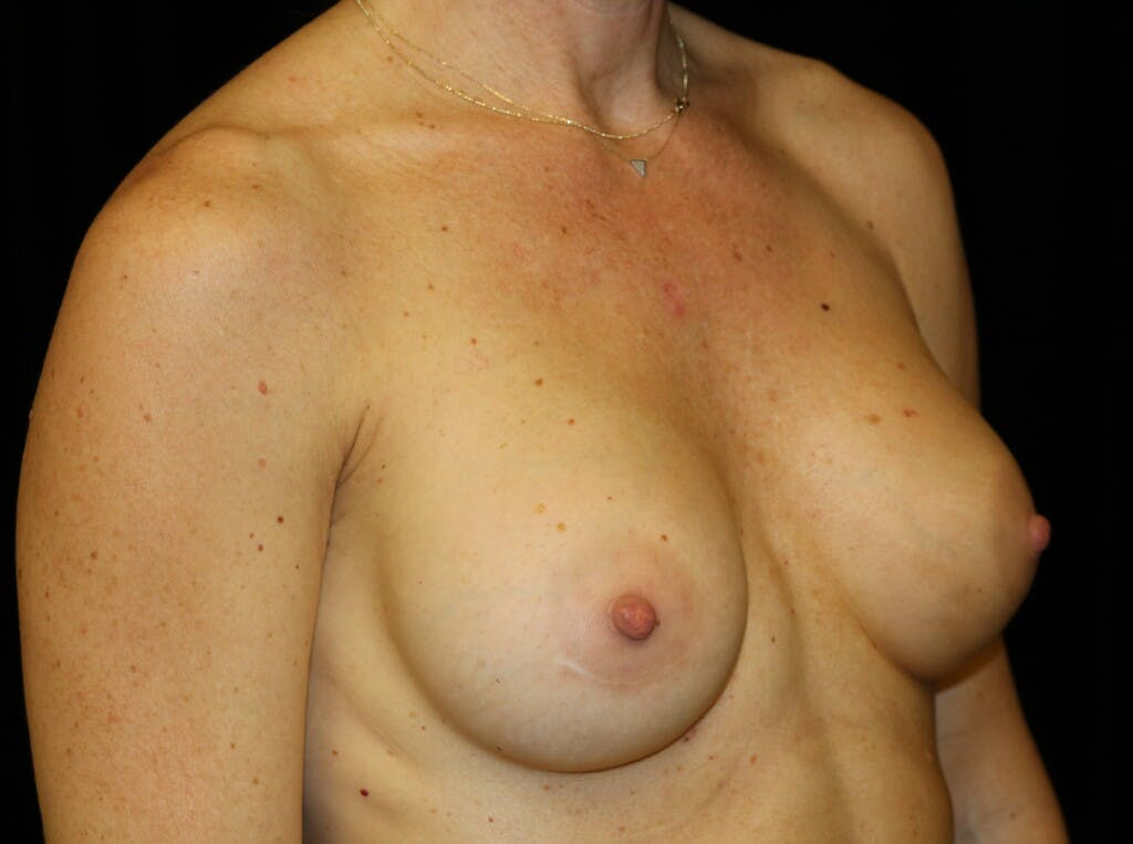 Breast Augmentation Gallery - Patient 39244340 - Image 4