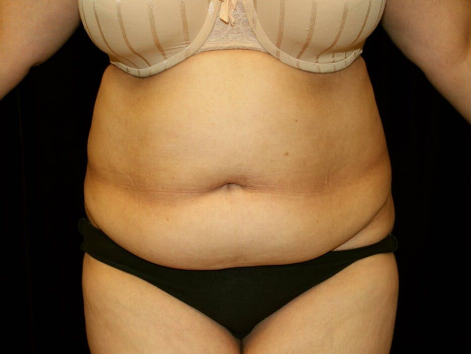 Tummy Tuck Gallery - Patient 39244342 - Image 1