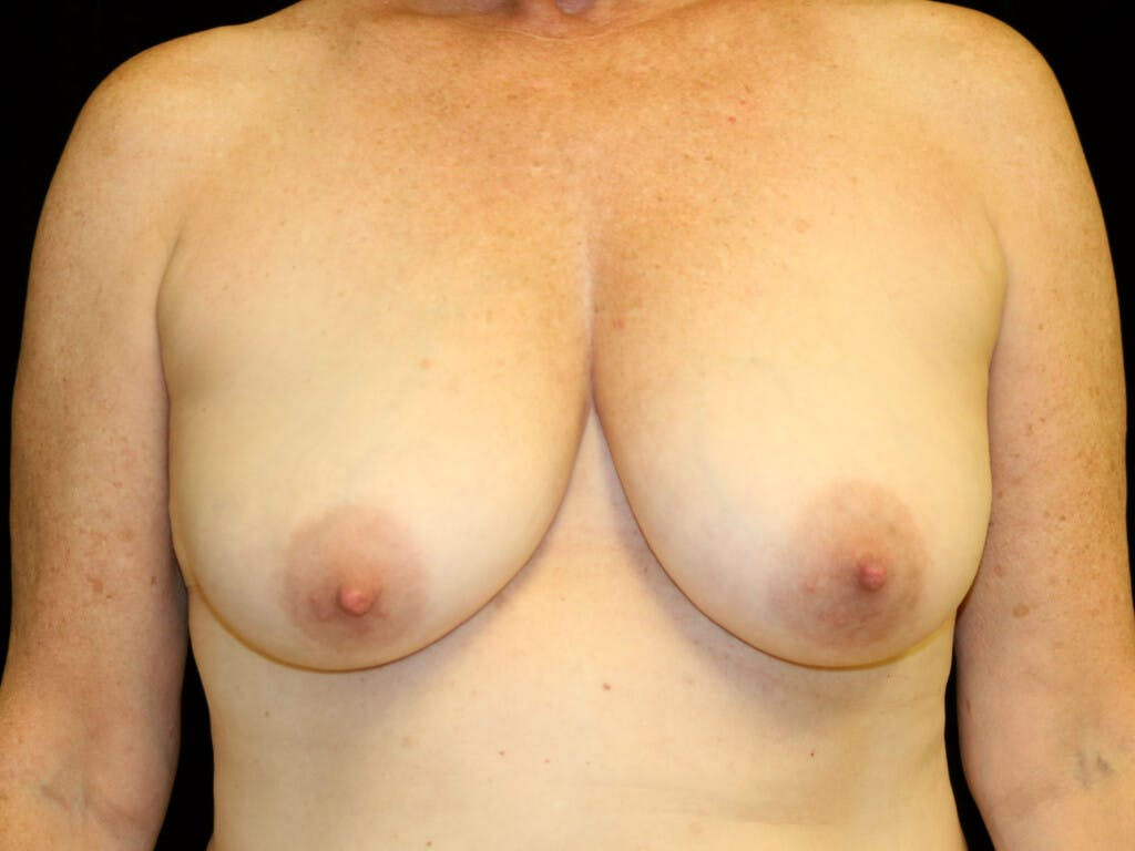 Vertical and Inverted T Breast Lift Gallery - Patient 39244341 - Image 1