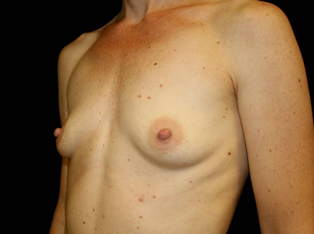 Breast Augmentation Gallery - Patient 39244340 - Image 5