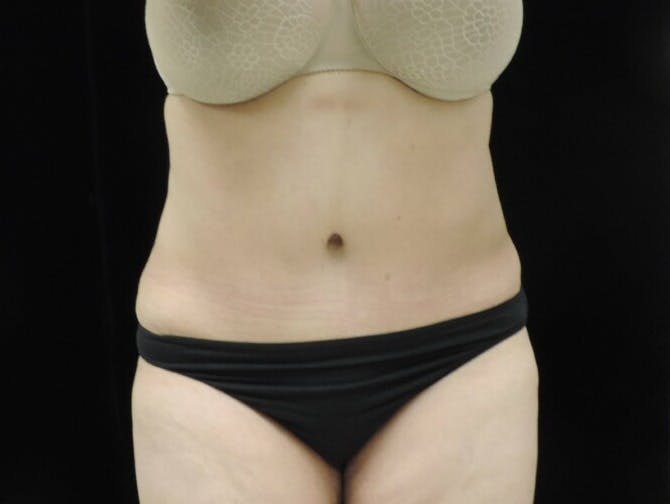 Tummy Tuck Gallery - Patient 39244342 - Image 2