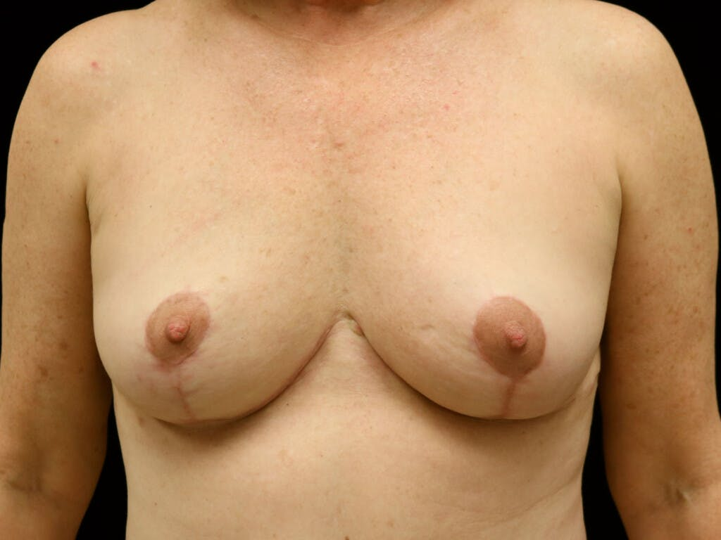 Vertical and Inverted T Breast Lift Gallery - Patient 39244341 - Image 2