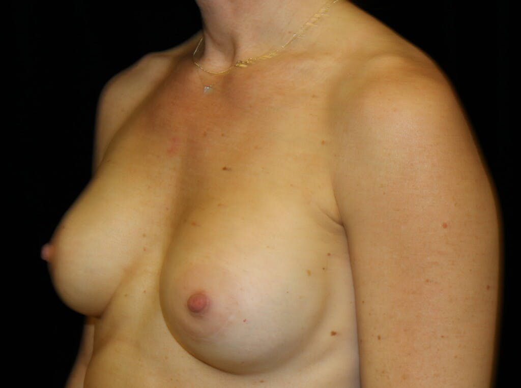 Breast Augmentation Gallery - Patient 39244340 - Image 6