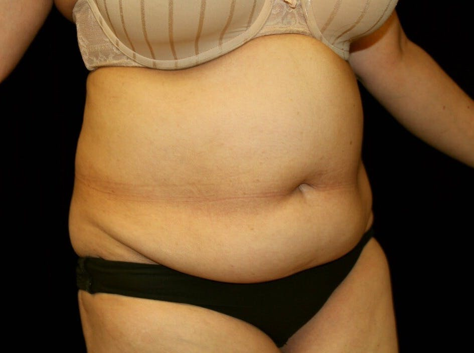 Tummy Tuck Gallery - Patient 39244342 - Image 3