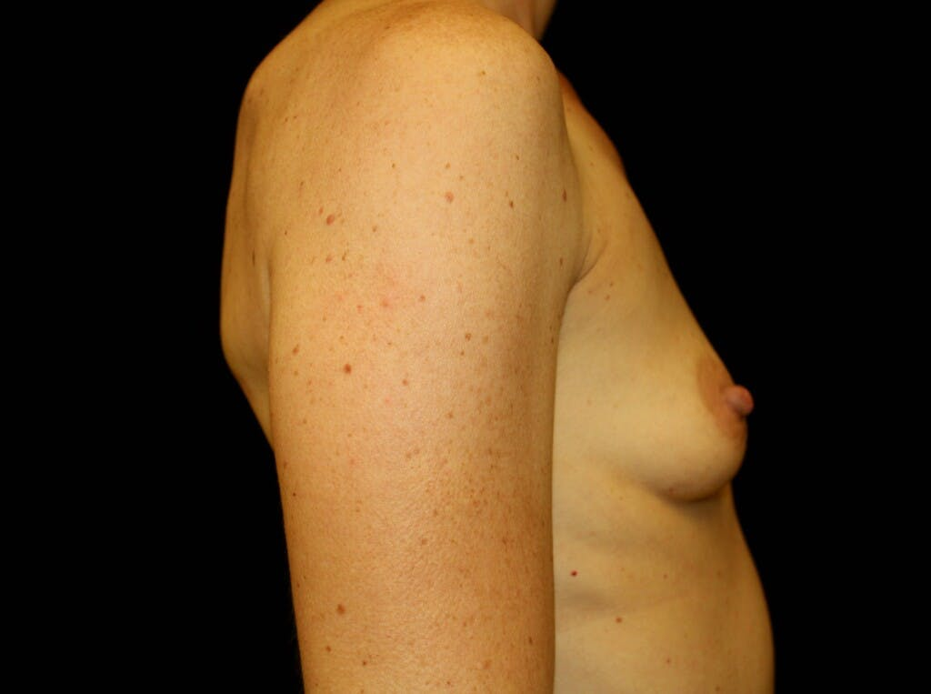 Breast Augmentation Gallery - Patient 39244340 - Image 7