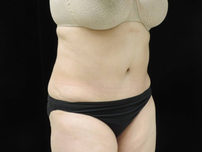 Tummy Tuck Gallery - Patient 39244342 - Image 4