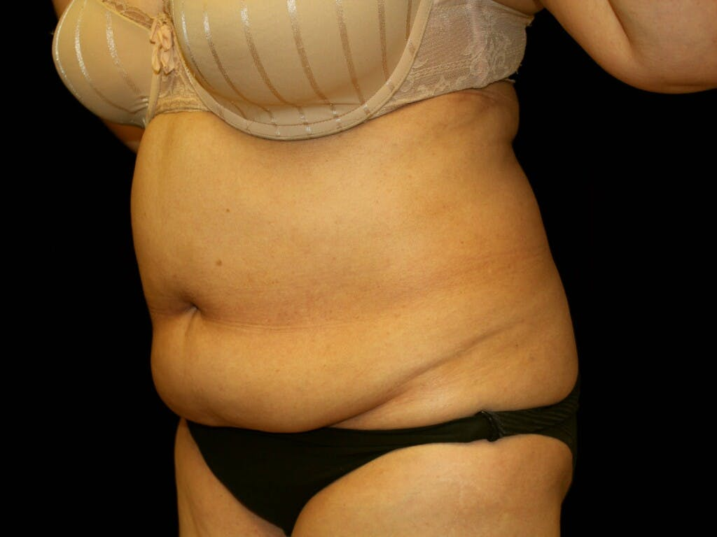 Tummy Tuck Gallery - Patient 39244342 - Image 5
