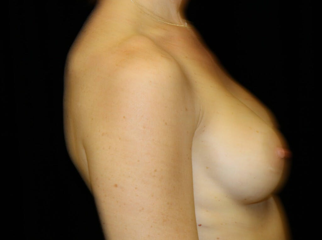 Breast Augmentation Gallery - Patient 39244340 - Image 8