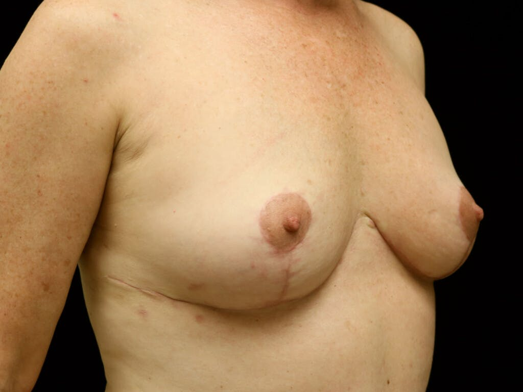 Vertical and Inverted T Breast Lift Gallery - Patient 39244341 - Image 4