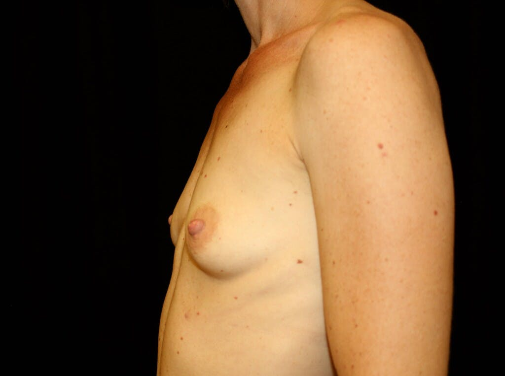Breast Augmentation Gallery - Patient 39244340 - Image 9